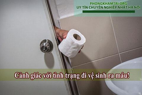 Cảnh giác với đi vệ sinh ra máu tươi