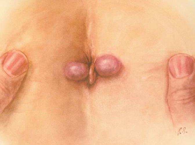 Các phương pháp điều trị bệnh trĩ ngoại