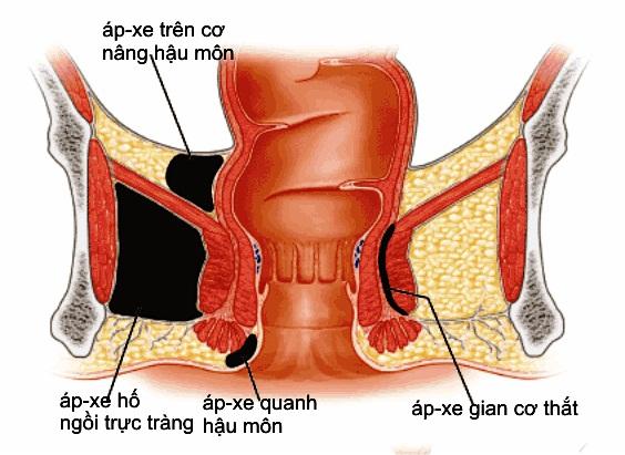 Rò hậu môn xuyên cơ thắt là gì?